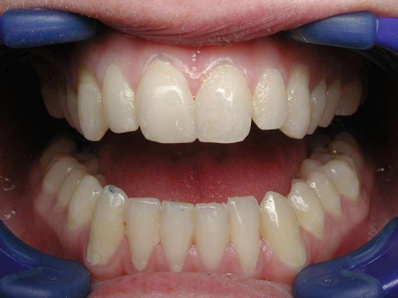 השלמת שיניים ושחזור לבנים