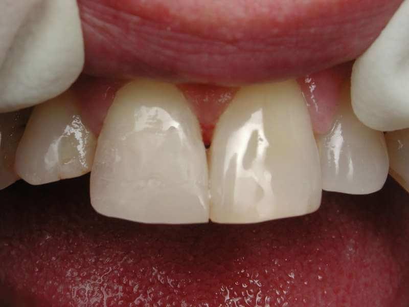 השלמת השיניים עם חומר מרוכב