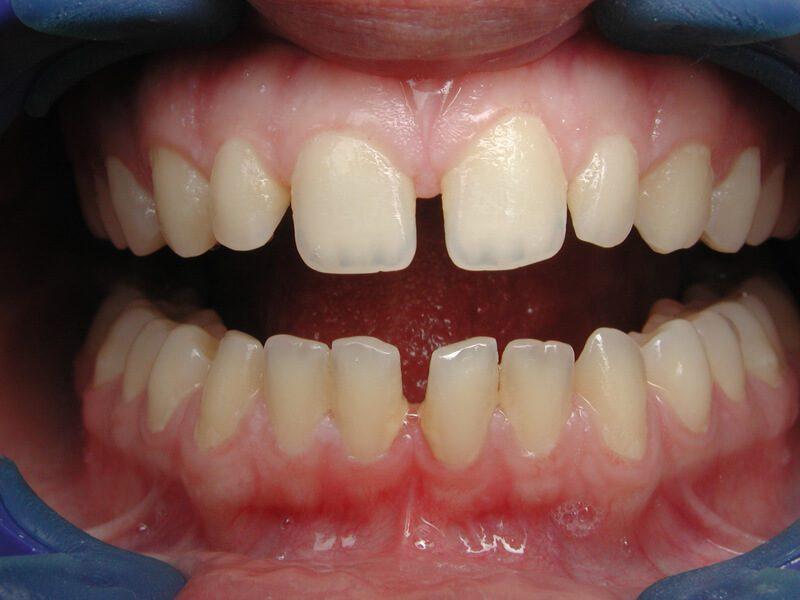 מרווחים בין השיניים עקב שיניים קטנות