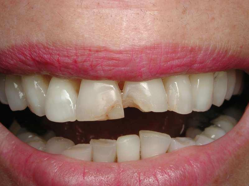 השלמת שיניים תצלום לפני