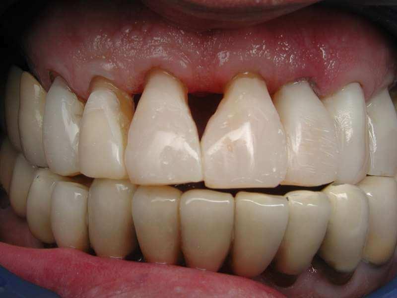 השלמת שיניים צילום פה