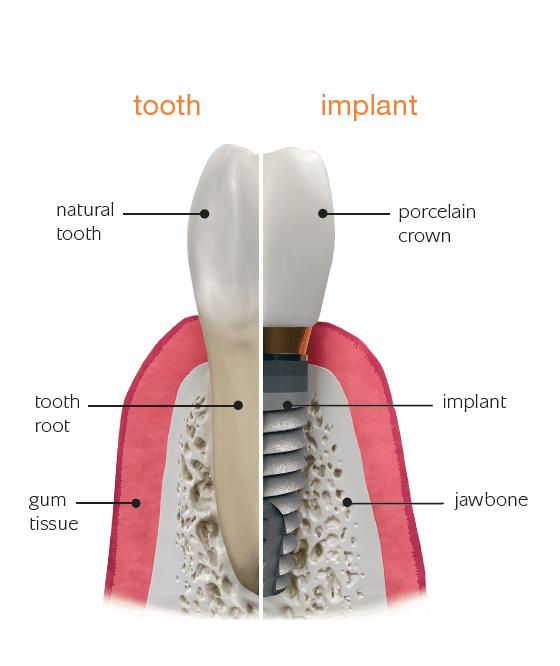 מומחה להשתלות שיניים