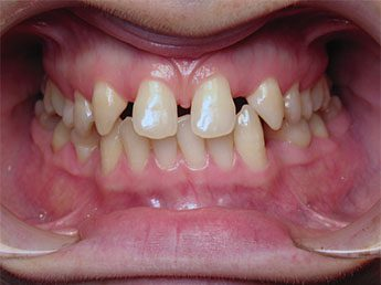 סגירת רווח בשיניים