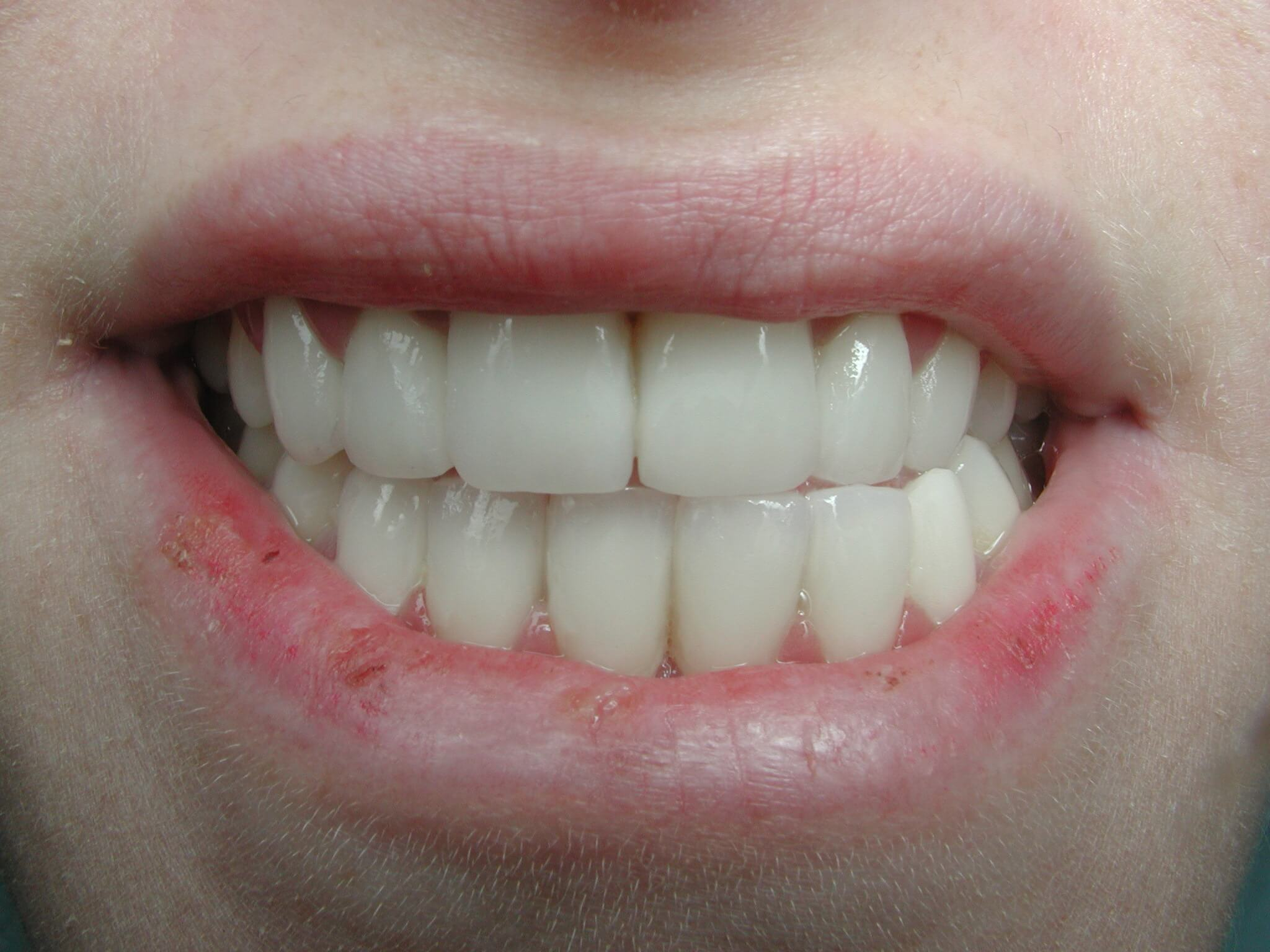 סגירת רווחים בשיניים הקדמיות