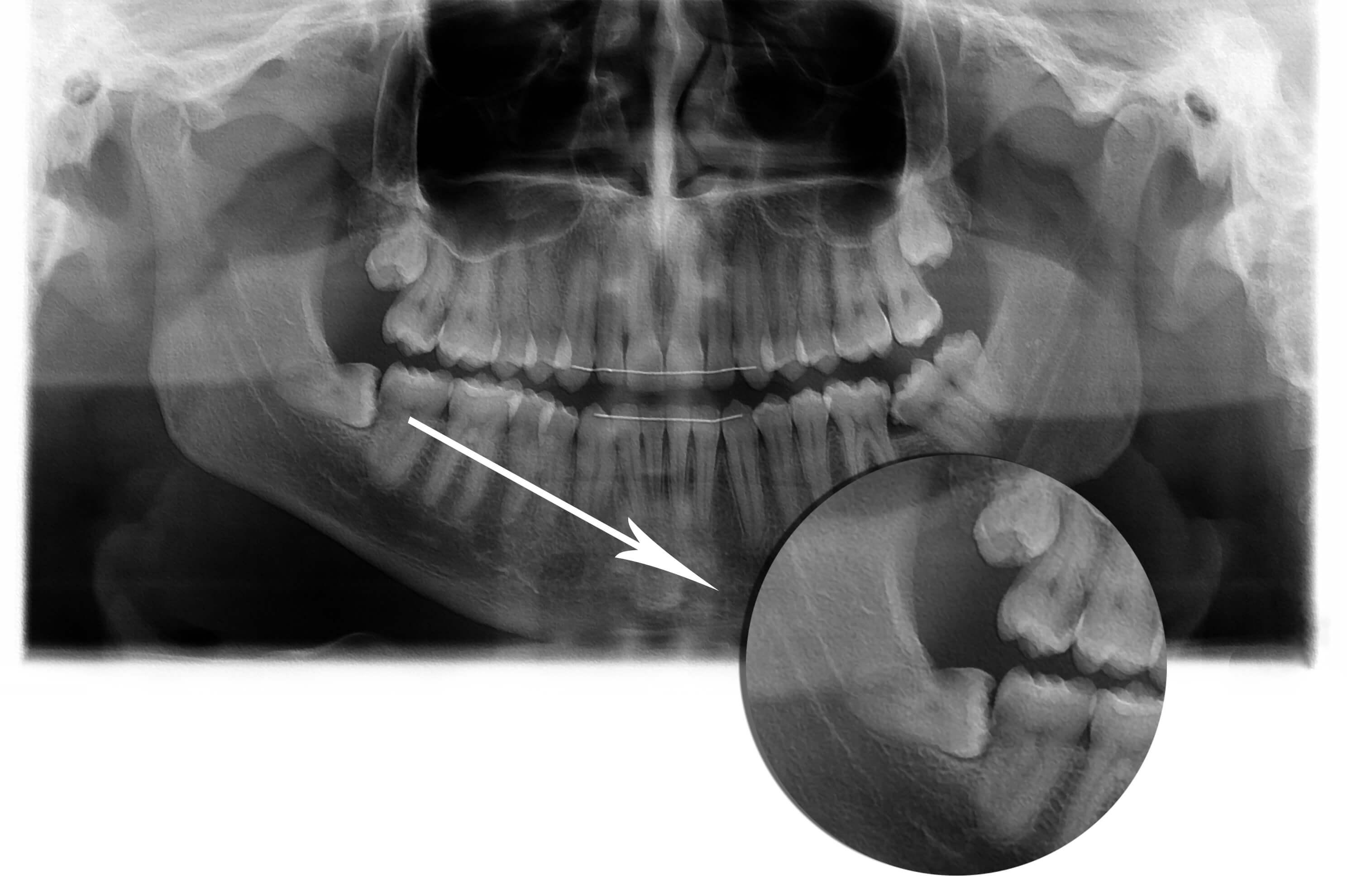 עקירות וטיפולים כירוגיים / עקירת שיני בינה כלואות