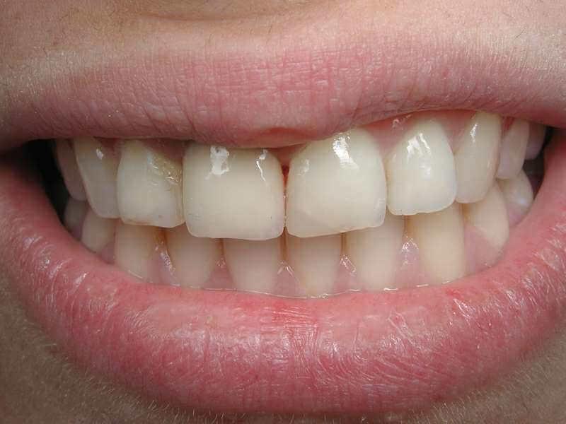 אחרי סגירת רווח בין השיניים