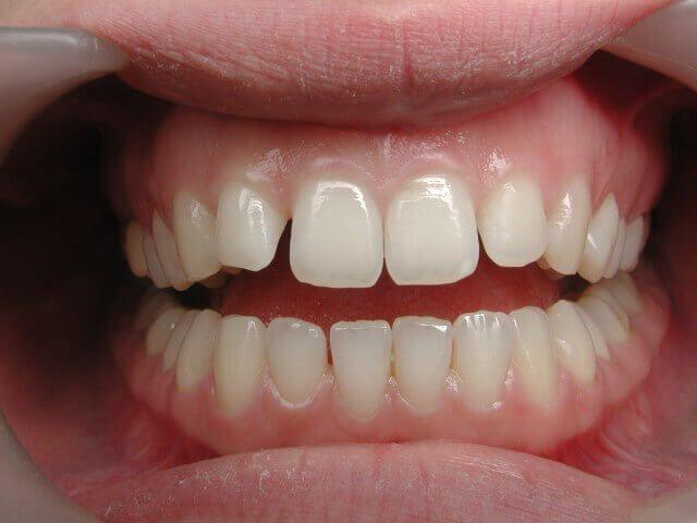 ציפוי שיניים לפני