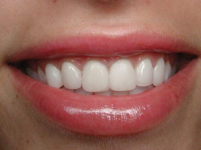 ציפןוי שיניים אחרי
